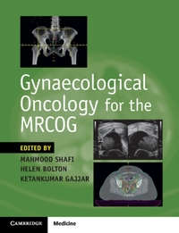Gynaecological Oncology for the Mrcog-